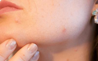 Natural Progesterone Cream for Acne Solution
